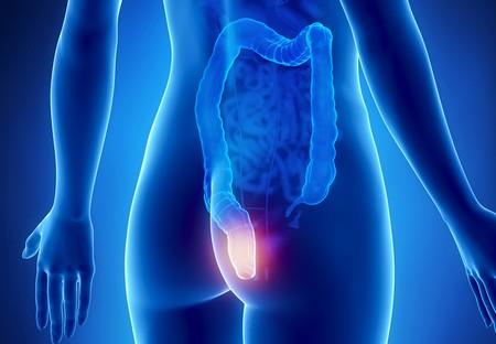 Проктит – воспалительный процесс в слизистой оболочке прямой кишки
