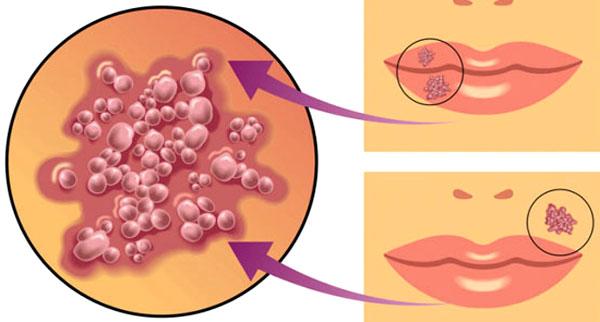 Цитомегаловирус симптомы у женщин введение