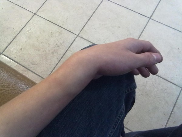 Визуальные характеристики при травмах верхней конечности
