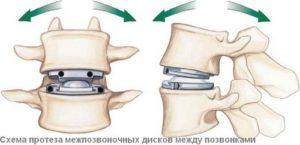 Имплантант