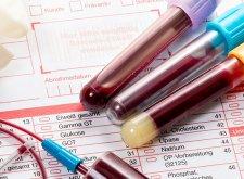 Адгезивный плеврит: причины и признаки образования фиброзных спаек