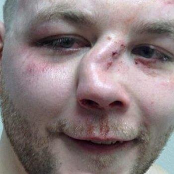 Перелом со смещением приводит к изменению формы носа