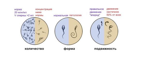 Подготовка к спермограмме введение