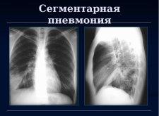 Двухсторонняя пневмония у ребенка: что нужно знать об этом заболевании