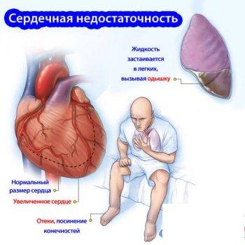 При декомпенсаторной сердечной недостаточности могут отекать нижние конечности.