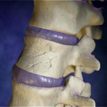 Неосложненный компрессионный перелом
