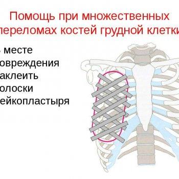 При множественных переломах ребер иногда используют лейкопластырь