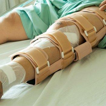 При консервативном лечении перелома шейки бедренной кости для фиксирования отломков используют внешние устройства