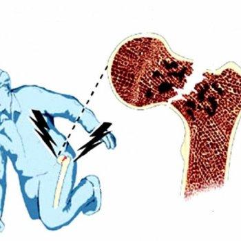 При прогрессирующем остеопорозе у пожилых людей любая, даже незначительная травма, может приводить к перелому шейки бедра.