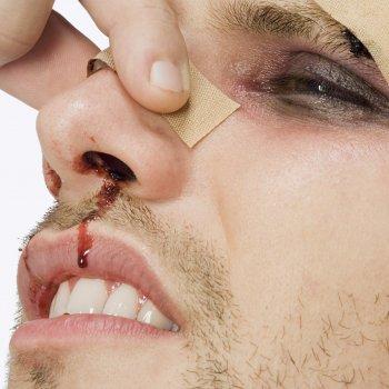 Почти всегда травма сопровождается носовым кровотечением