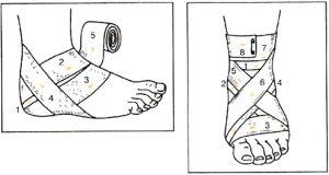 Сколько заживает растяжение связок голеностопа?