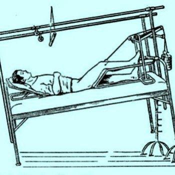 При невозможности проведения операции при сложных травмах шейки бедра используют метод вытяжения (на фото)