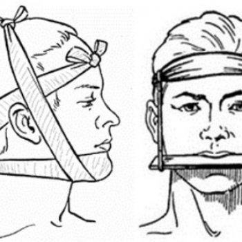 Признаки перелома челюсти, виды травм, причины, диагностика, первая помощь и лечение