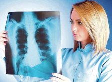 Хронический бронхит: что важно знать пациентам