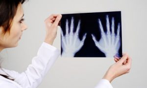 Артроскопия кисти