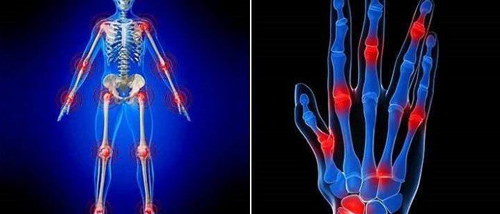 Причины и лечение артроза всех суставов