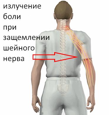 Боль при защемлении затылочных нервов