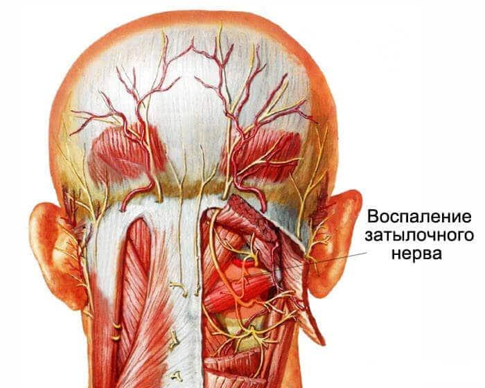 Болит голова при затылочной невралгии
