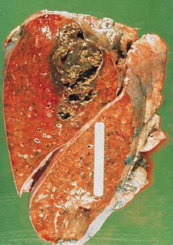 Абсцесс лёгкого (фото)