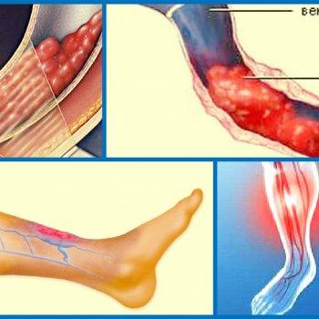 Тромбоз нижних конечностей после травмы может стать причиной долго не проходящих отеков.