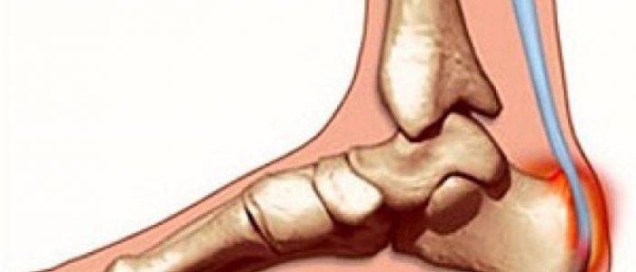 Что такое ахиллобурсит?
