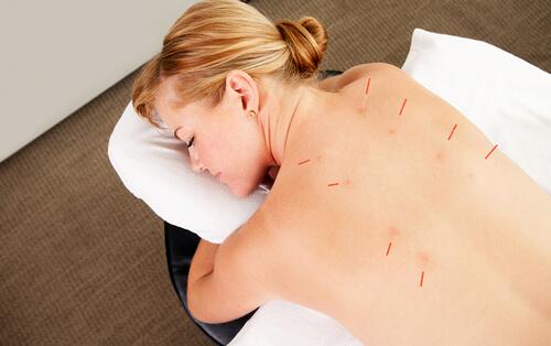 как быстро вылечить спину при защемлении нерва иглоукалыванием