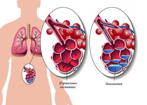 Альвеолы в нормальном и больном состоянии