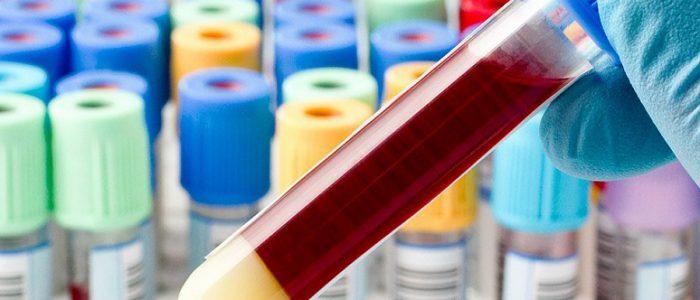 Как определить уровень глюкозы в крови?