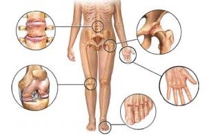 Лечение артроза хондропротекторными препаратами