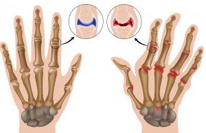 Магнитно-резонансная томография локтевого сустава
