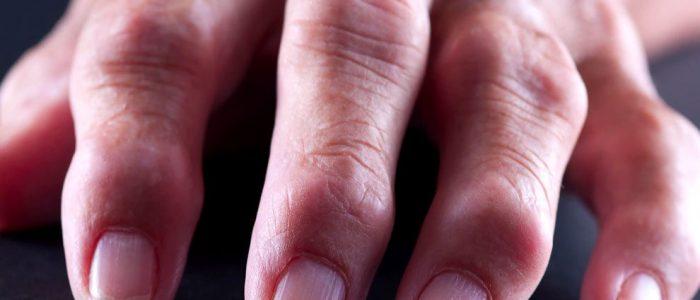Воспаляются суставы на пальцах рук