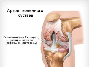 Что такое артрит?