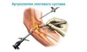 Локтевой эпикондилит