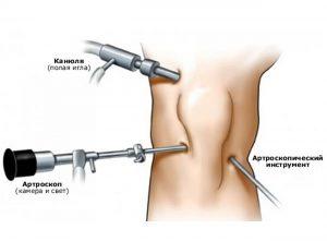 Формы и лечение посттравматического синовита
