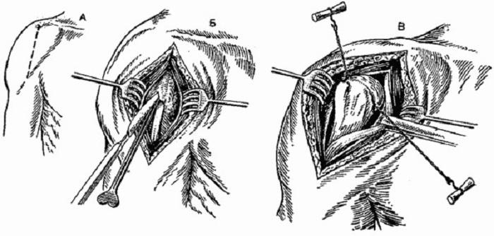 Показания и противопоказания к проведению артротомии суставов