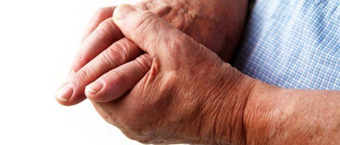 Артроз пальцев на руках