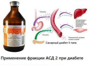 АСД при диабете