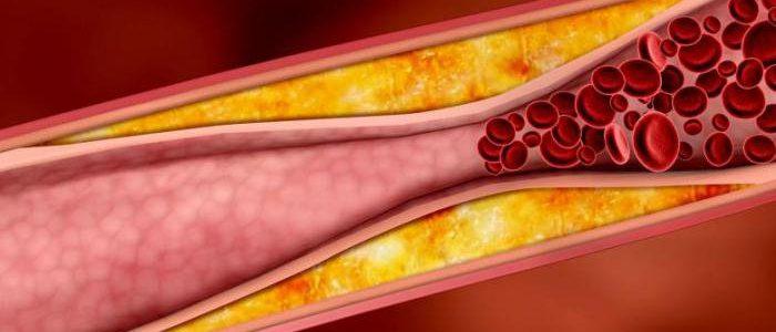 Атеросклероз при диабете