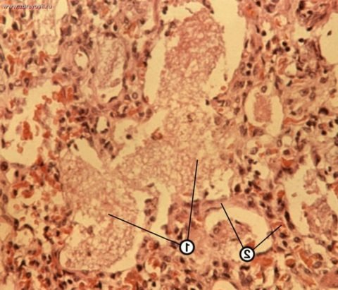Атипичная пневмония (фото ткани легкого)