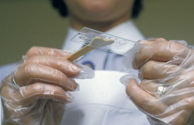 Бактериологический посев у мужчин
