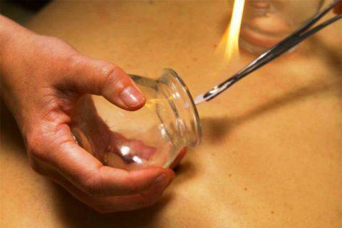 Баночный массаж при бронхите – что это такое?