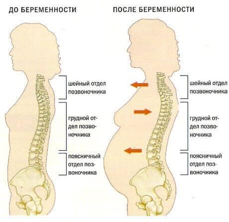 Появление остеохондроза из-за беременности