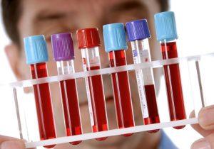 Проявление и лечение ювенильного хронического артрита