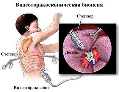 Биопсия легкого