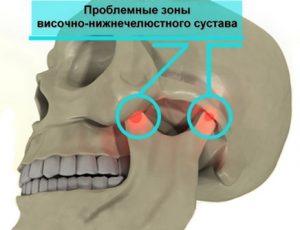 Симптомы и лечение артрита челюстно-лицевого сустава