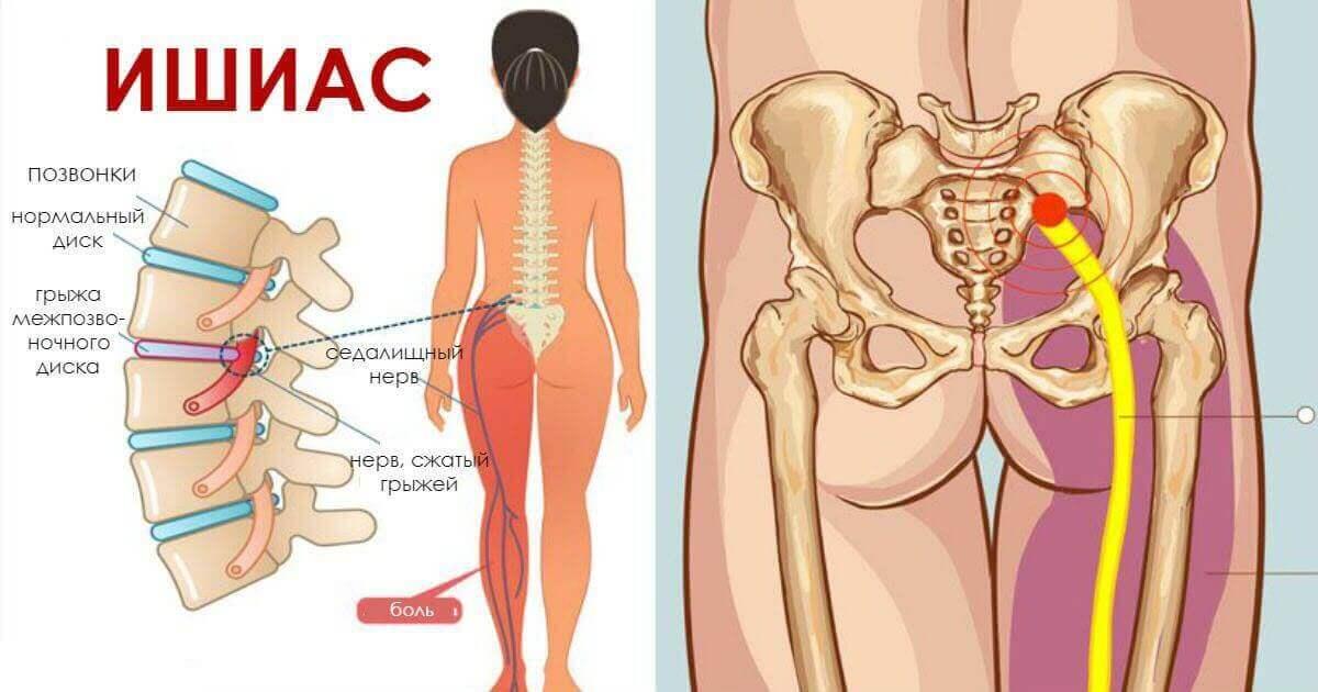 лечение ишиаса седалищного нерва медикаментозное лечение и симптомы