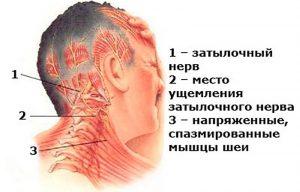 Строение и болезни атлантозатылочного сустава
