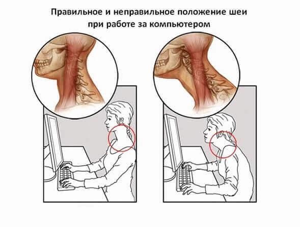 Болит шея при шейном остеохондрозе
