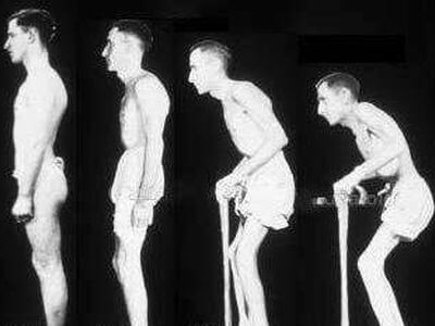 Степени болезни Бехтерева