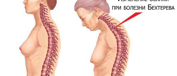 Симптомы и лечение болезни Бехтерева у женщин
